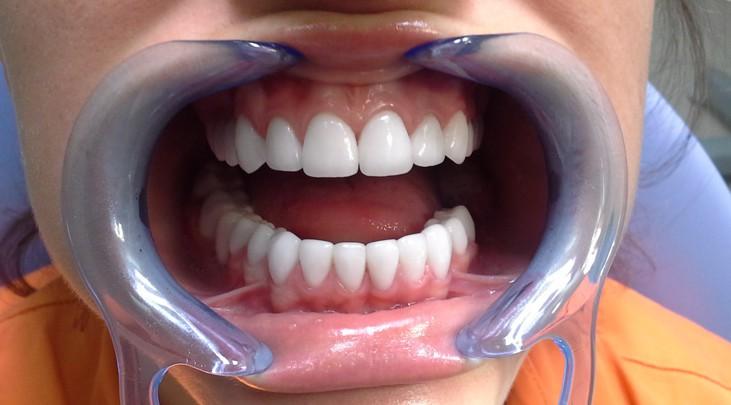 Сколько стоит лечение зубов коронка